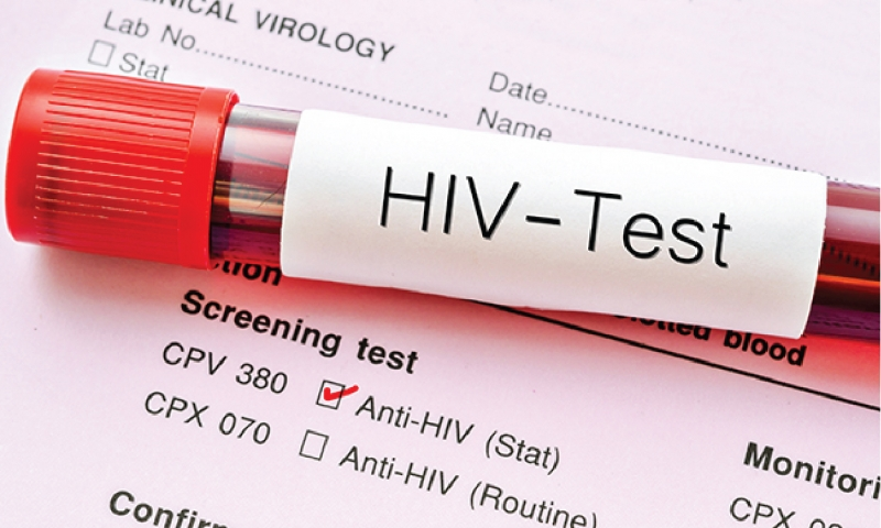 Current approaches to HIV prevention, treatment and care