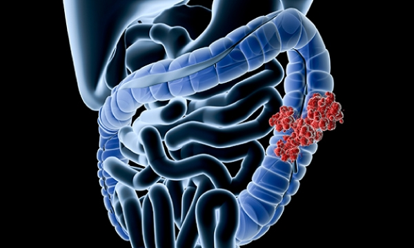 Presentation, diagnosis and treatment of colorectal cancer