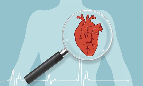 Early detection of inherited cardiac conditions in primary care
